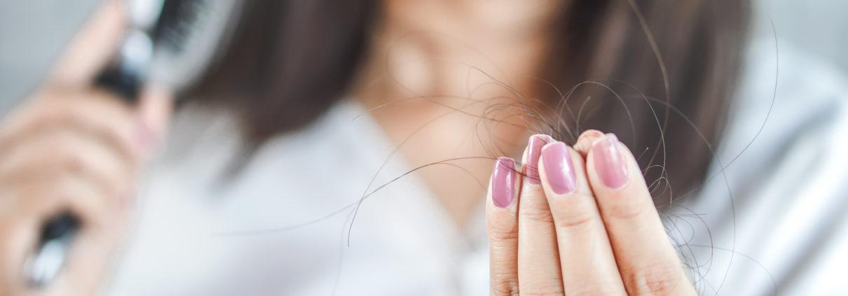 Eine Frau hat Haarausfall und hält Ihre ausgefallenen dunklen Haare in die Kamera. Unike Kapseln können bei Haarausfall helfen.